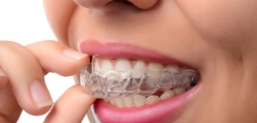 Invisible Braces: Everything You Need To Know About Them